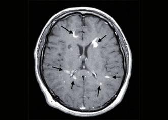 herpes encephalitis treatment steroids