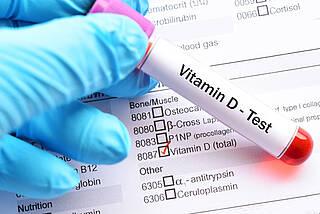 vitamin d, vitamin-d-spiegel, vitaminmangel