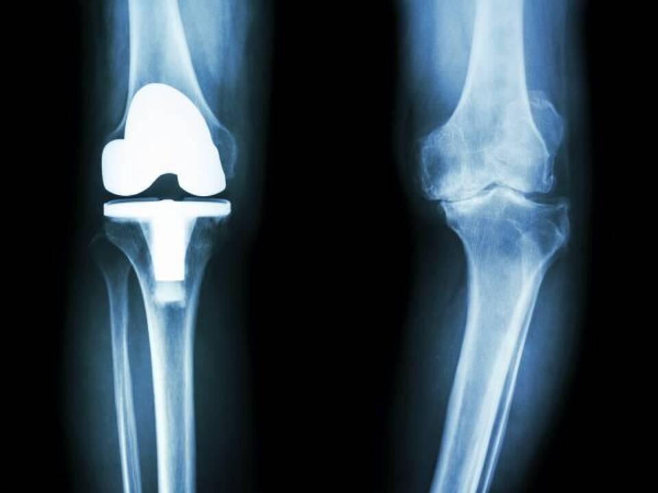 Knieprothese, Hüftprothese, Fallzahl