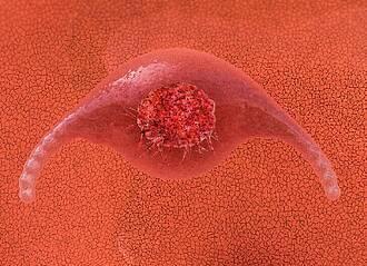 Therapie gegen Vorstufe von Gebärmutterhalskrebs
