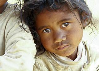Lepra - die vergessene Krankheit