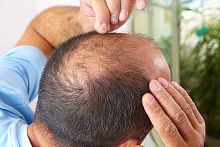 Haarausfall, Glatze, schütteres Haar, Haarverlust