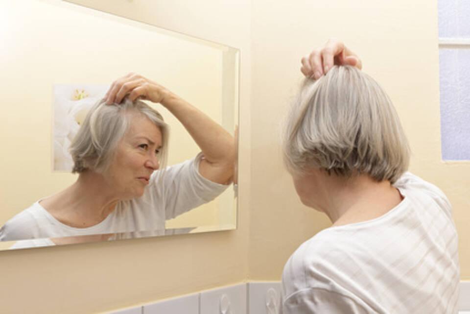 Frau mit erblich bedingtem Haarausfall: Minoxidil regt tatsächlich das Haarwachstum an