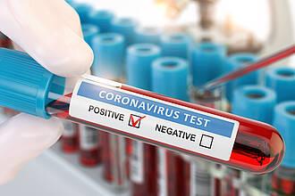 Corona-Test, positiver Test