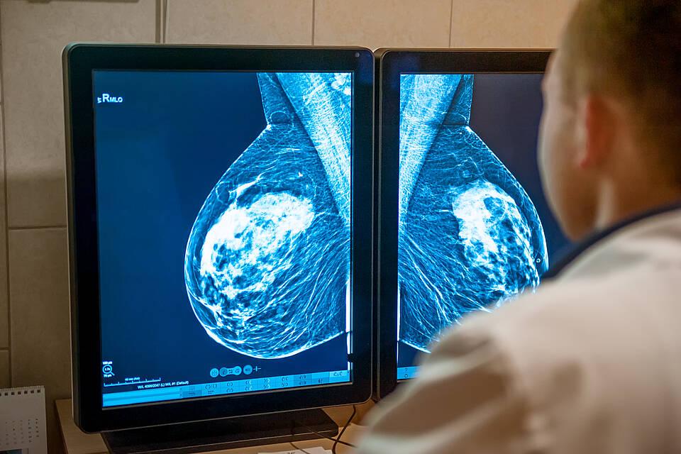 Brustkrebs, Mammographie