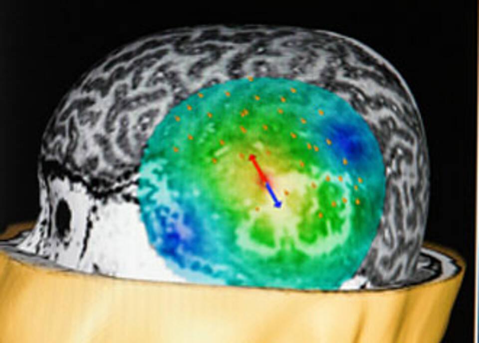 Glioblastom: So werden Hirntumore heute behandelt