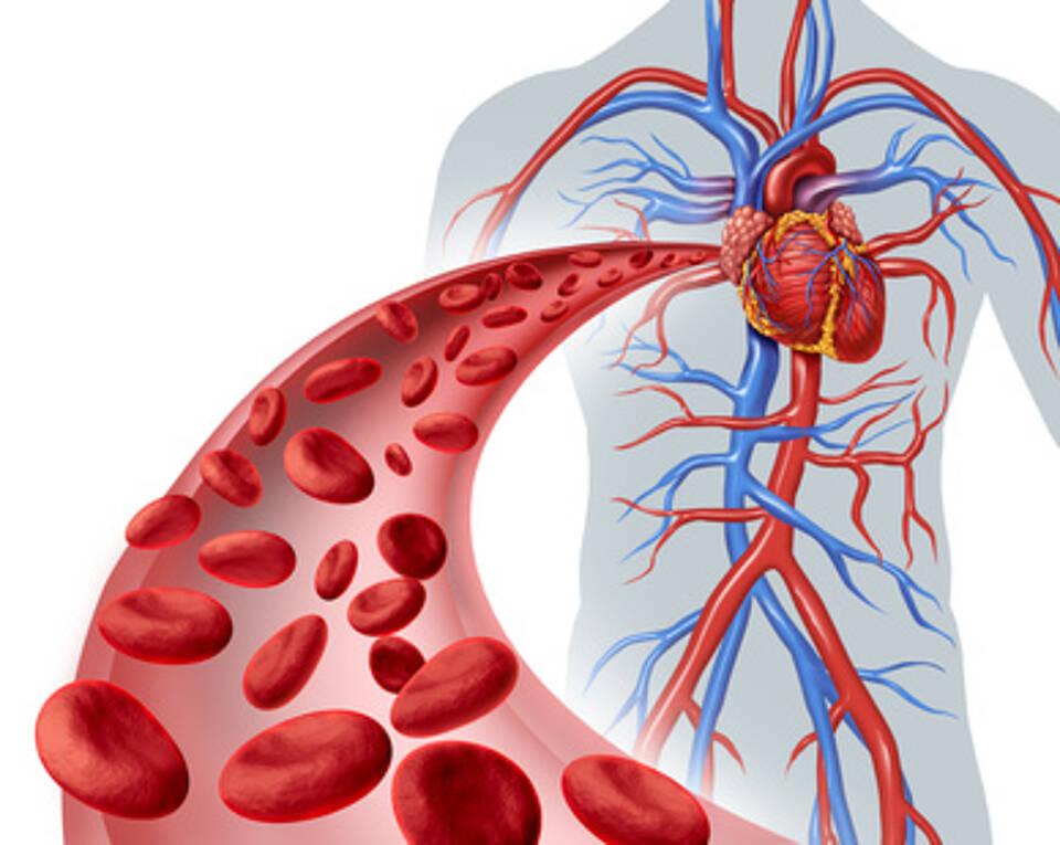 TAVI bei Aortenstenose