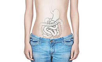 Enddarmkrebs und seine Behandlungsfolge Inkontinenz: Wirklich Abhilfe schafft nur eine Stoma