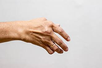 rheumatoide arthritis, rheuma, schmerzen, gelenkschmerzen, gelenke