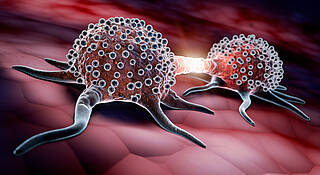 Inoperable Lebermetastasen, neue Therapie