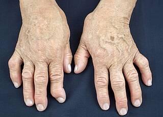 Rheumatoide Arthritis und kardiales Risiko