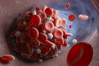 Wenn bei COVID-19 Blutgerinnsel in der Lunge auftreten, handelt es sich vermutlich um eine Immunthrombose