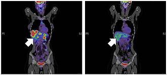 Das HIV-Medikament Maraviroc blockiert das Oberflächeneiweiß CCR5. Dadurch werden die Makrophagen in der Leber aktiviert die Metastasen zu bekämpfen. Die Metastasen in der Leber (li) verschwanden nach Behandlung (re)