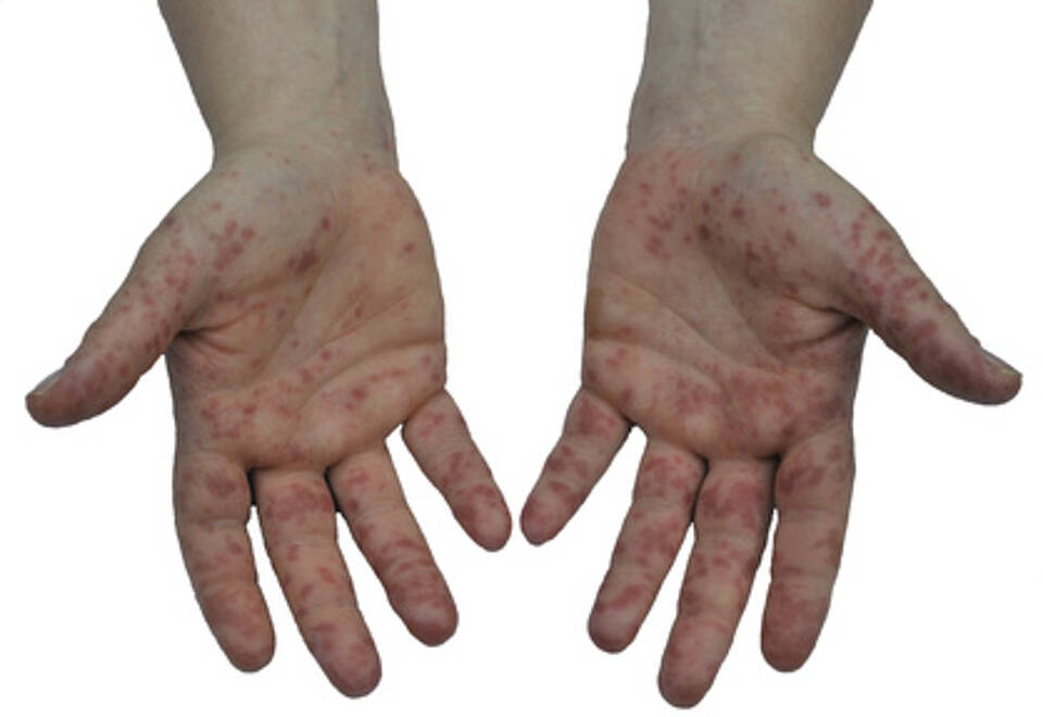 Bläschen an den Händen
