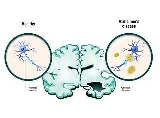Alzheimer-Forscher sind zuversichtlich: Es wird ein Heilmittel gegen Alzheimer geben