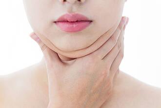 Genetische Disposition für Kopf-Hals-Tumore aufgeklärt: Bei manchen Menschen ist die HLA-abhängige Immunantwort gestört