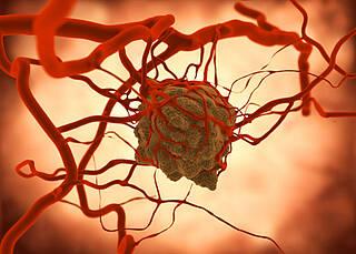 Finanzierung für Krebsregister steht