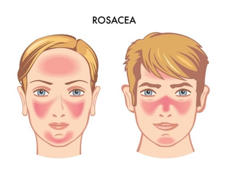Rosacea - Frauengesicht, Männergesicht