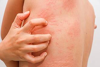 Omalizumab wirkt bei Nesselsucht