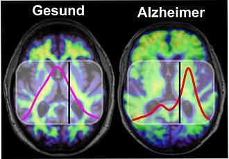 Alzheimer, Bluttest