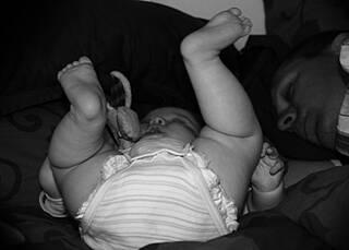 Hüftgelenksdysplasien bei Säuglingen: Ultraschall sorgt für Klarheit