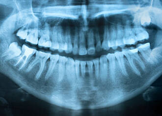 Häufiges Röntgen der Zähne erhöht Tumorrisiko