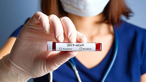 Sprunghafter Anstieg der Fallzahlen in den letzten Tagen: Deutschland steht am Beginn einer Coronavirus-Epidemie