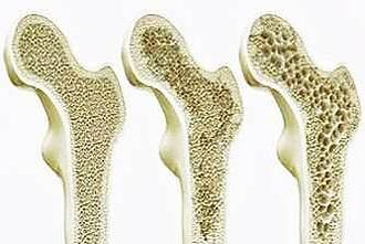 3 Knochen im Schnitt - fortschreitenden Osteoporose