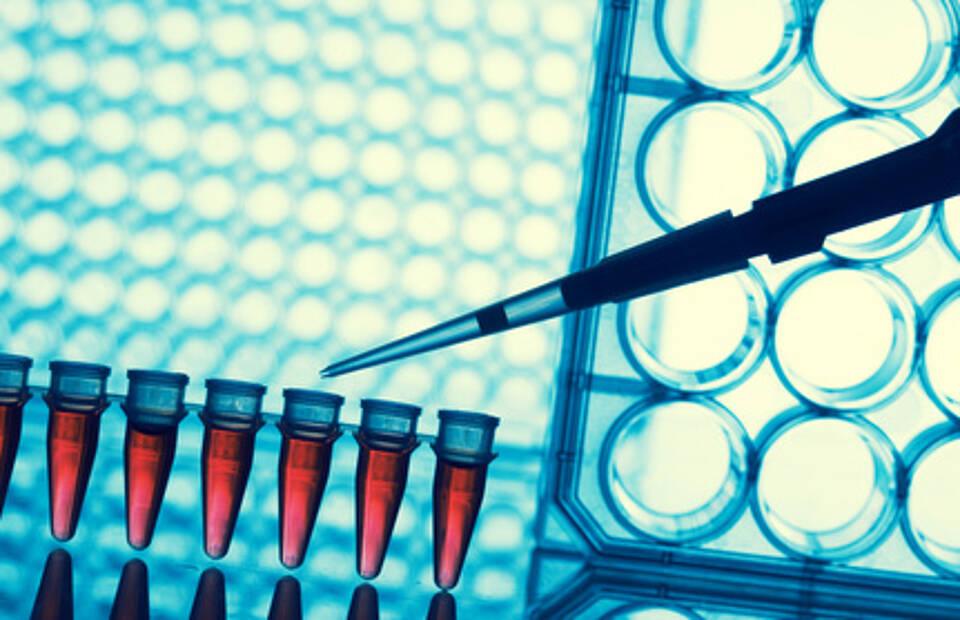 Heidelberger Wissenschaftler prüfen MS-Medikament zur Behandlung des Sézary Syndroms