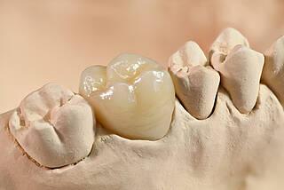 zirkonkrone, krone, zahnersatz, gipsmodell, zahnarzt, zahnheilkinde, prothetik