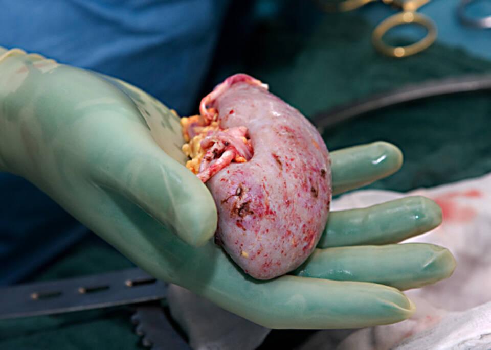 Fallzahlen in Transplantationszentren entscheidend