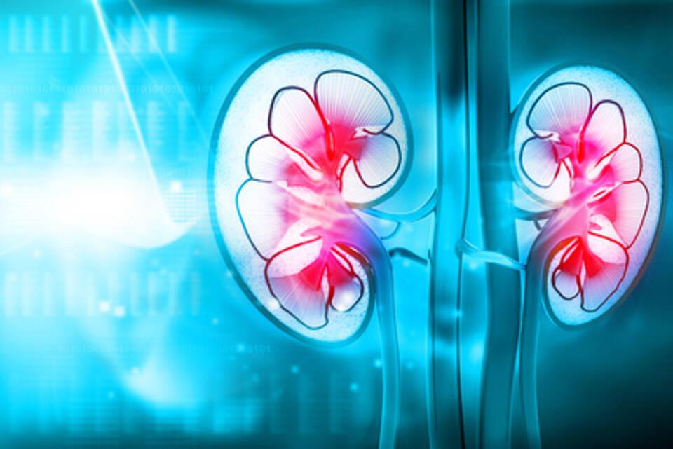 Diabetes kann zu schwerwiegenden Nierenschäden führen