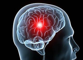 Nach einem Schlaganfall können Antidepressiva nützlich sein