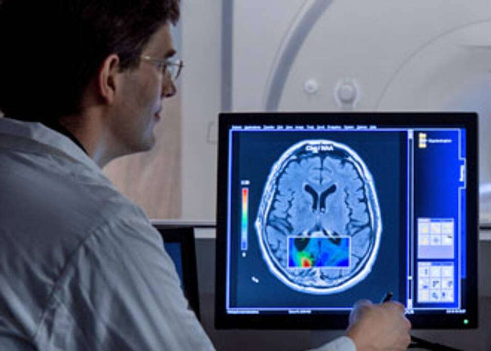 Das Glioblastom wird vielleicht nie geheilt werden können, aber neue Therapien können die Prognose bei einzelnen Patienten verbessern