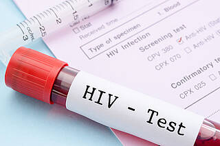 HIV, HIV-test, HIV-Infektion