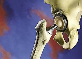 Probleme mit Hüftgelenken aus Metall