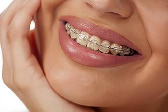 Brackets Welche Klebetechnik Ist Am Besten Für Zahnschmelz