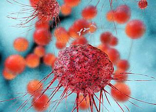 BRCA erhöht Eierstockkrebs-Risiko um 60 Prozent