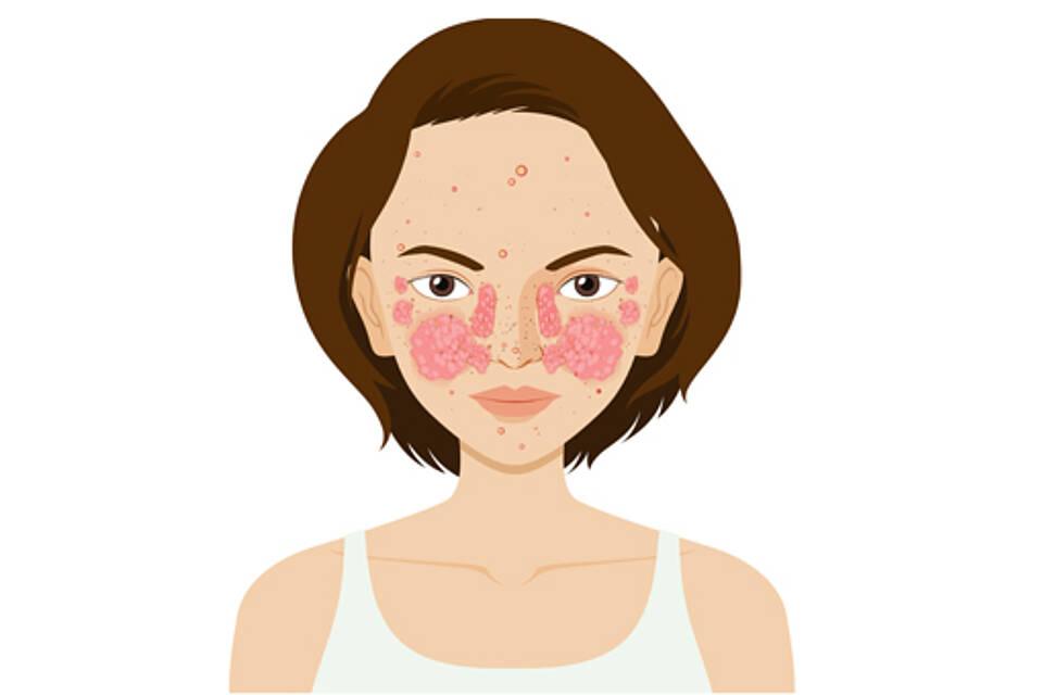 Lupus-Patientin mit typischen Hautrötungen im Gesicht.