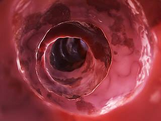 Colitis ulcerosa, entzündliche Darmerkrankungen, Stuhltransplantation, fäkale Bakterientherapie, Mikrobiom