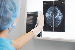 mammographie, brustkrebs-screening, brustkrebs-früherkennung