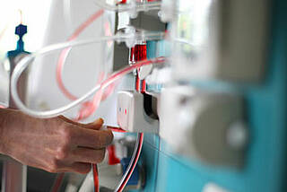 Charité macht Dialysepatienten Hoffnung: kürzere Dialysezeit und besseres Überleben