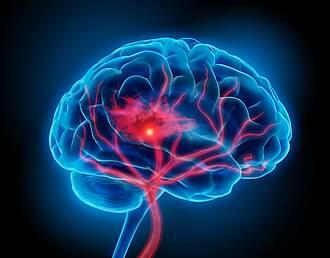 Intrakranielle Stenosen mit Medikamenten versorgen