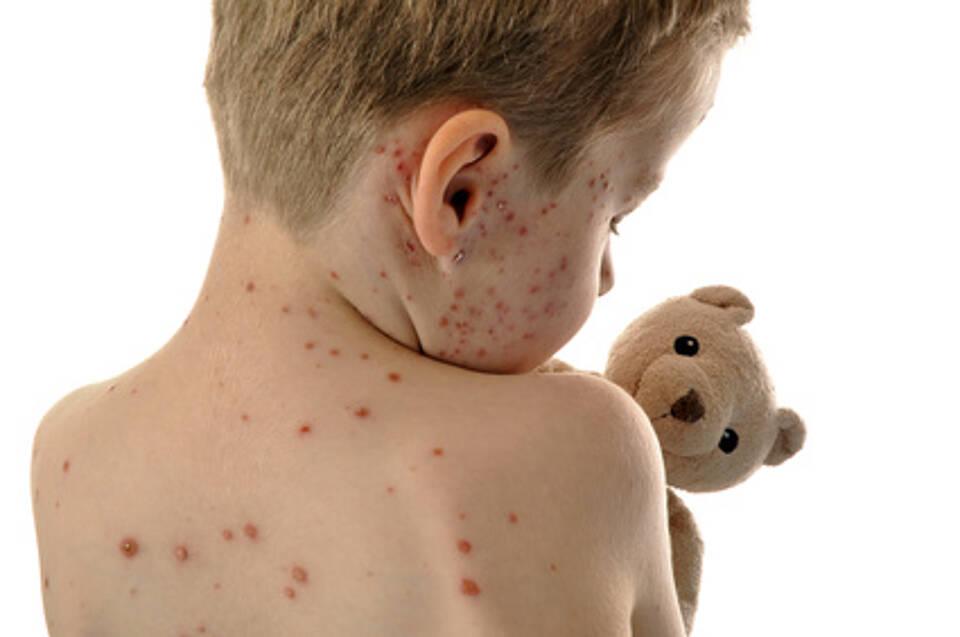Windpocken, Impfung, Stiftung Kindergesundheit