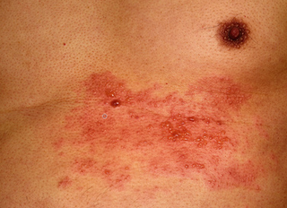 Herpes Zoster, Gürtelrose, Impfung