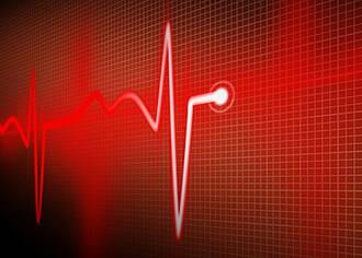 Vorhofflimmern erhöht Risiko für Schlaganfall