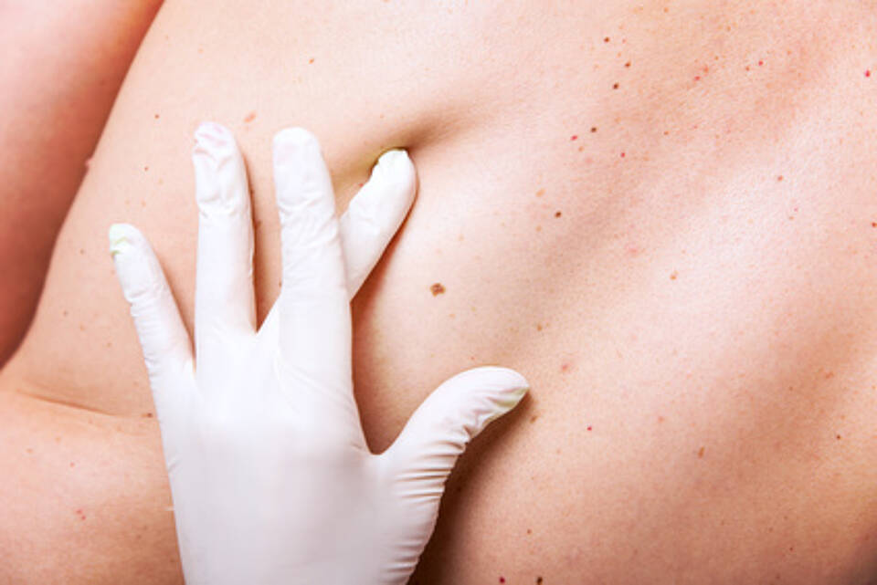 Hautkrebs-Vorsorge