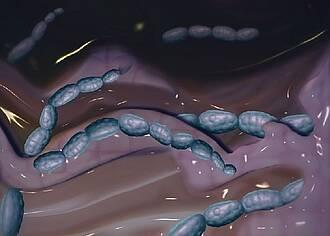 Streptokokken können Mandelentzündung auslösen