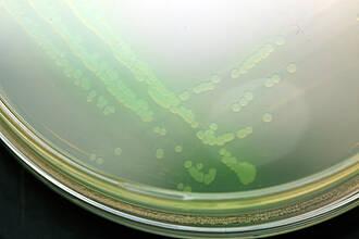 Kolonien von Pseudomonas aeruginosa wachsen in einer Petrischaleeiner