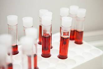 GPC-1 im Bluttest: Mögliche Früherkennung von Bauchspeicheldrüsenkrebs